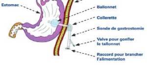 gastrotomie